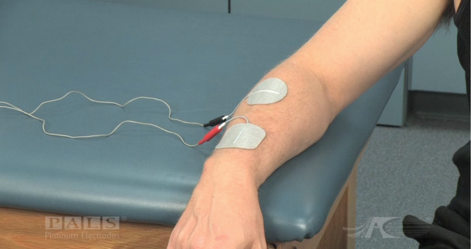 Best Electrode Placement For Arm and Hand Stroke Rehabilitation