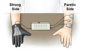 contralaterally-controlled-fes-hand-dexterity-hemiparesis
